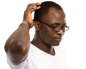 Kopfschmerzen durch Brille