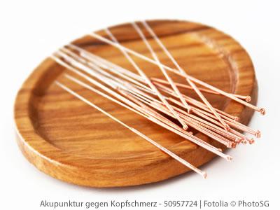Akupunktur als sinnvolle Behandlungsalternative bei Migräne