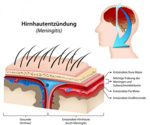 Kopfschmerzen – Hirnhautentzündung (Meningitis)